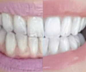 Smile Brilliant Before and After Side by Side