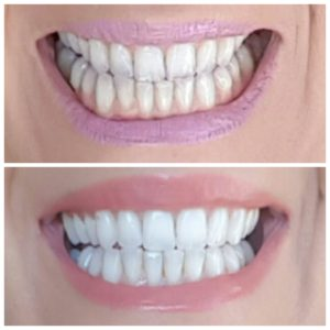 Before and After Smile Brilliant